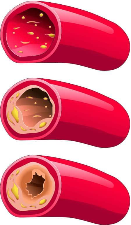 Esto le pasa a tus arterias cuando hay demasiado colesterol.